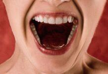 Salud dental y diabetes