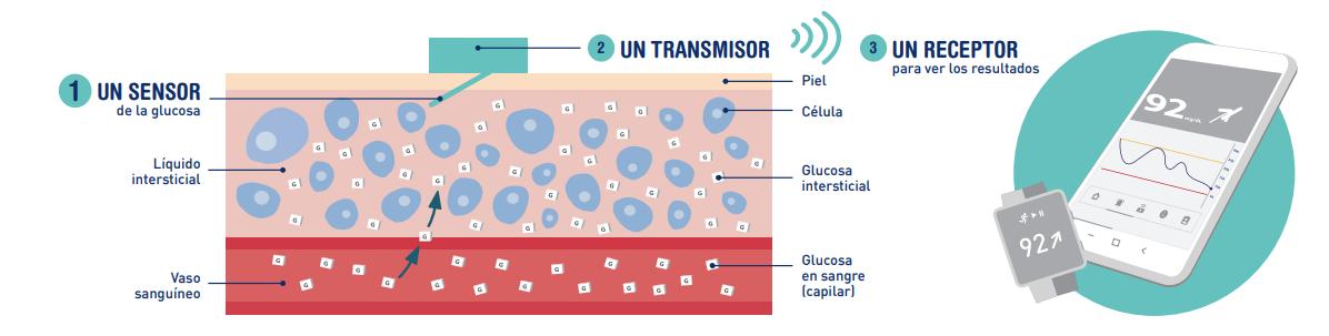 Componentes Monitorización Continua de glucosa