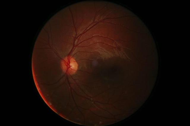Fotografia de la retina