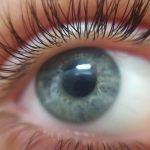 La retinopatía diabética es causada por la afectación de los vasos sanguíneos de la retina y es la principal causa de ceguera en las sociedades occidentales.