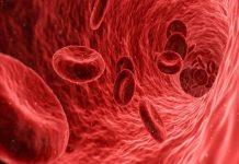 Relación entre la anemia y la diabetes