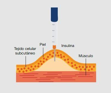 donde inyectar la insulina