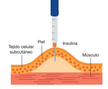 Como inyectar la insulina