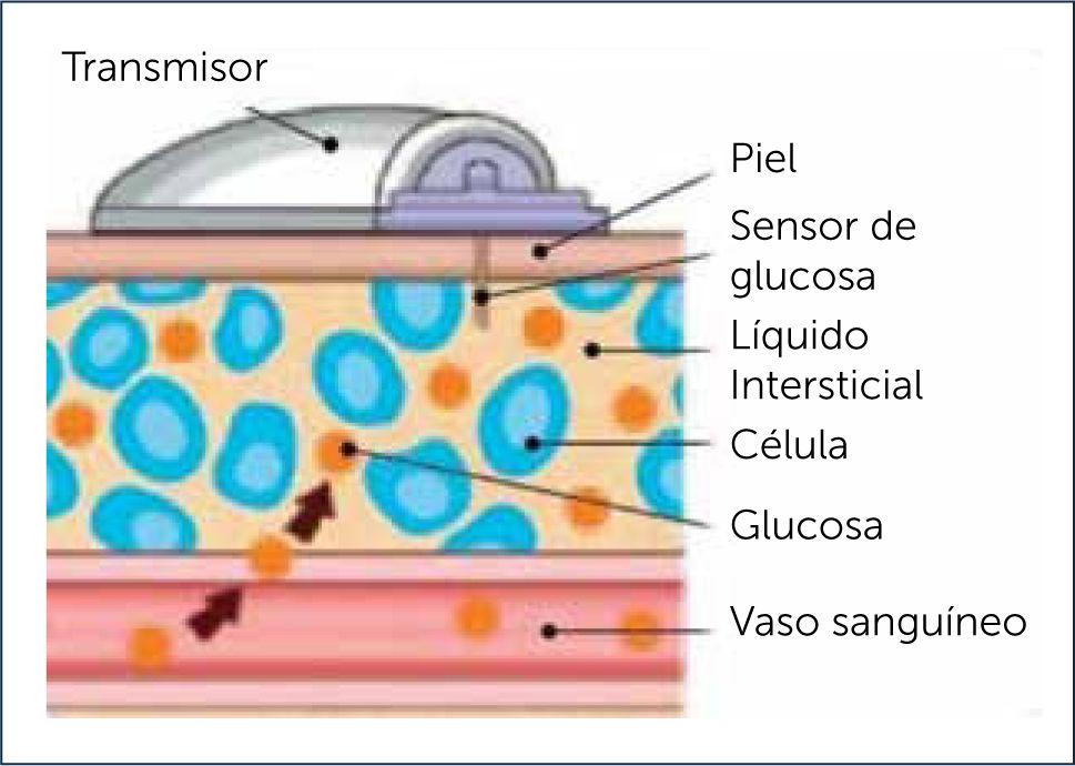 Medidor de glucosa sin pinchazo