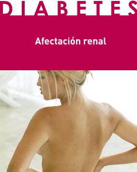 Afectación renal
